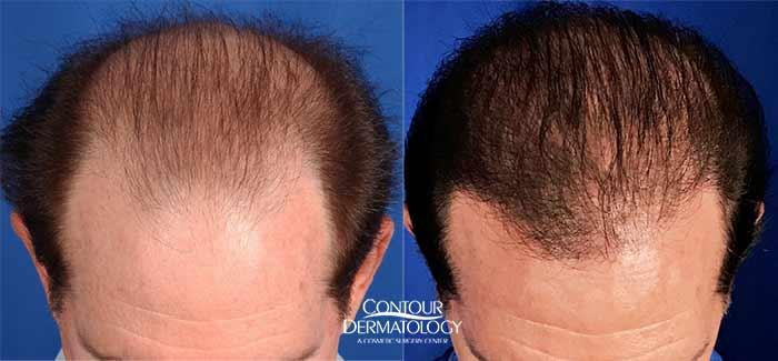 Hair Transplant Strip Graft, 2909 Grafts