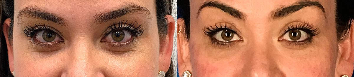 Juvéderm Vollure Before and After Gallery | Contour Dermatology