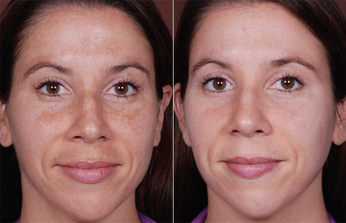 Melasma treatment results with Obagi NuDerm Kit