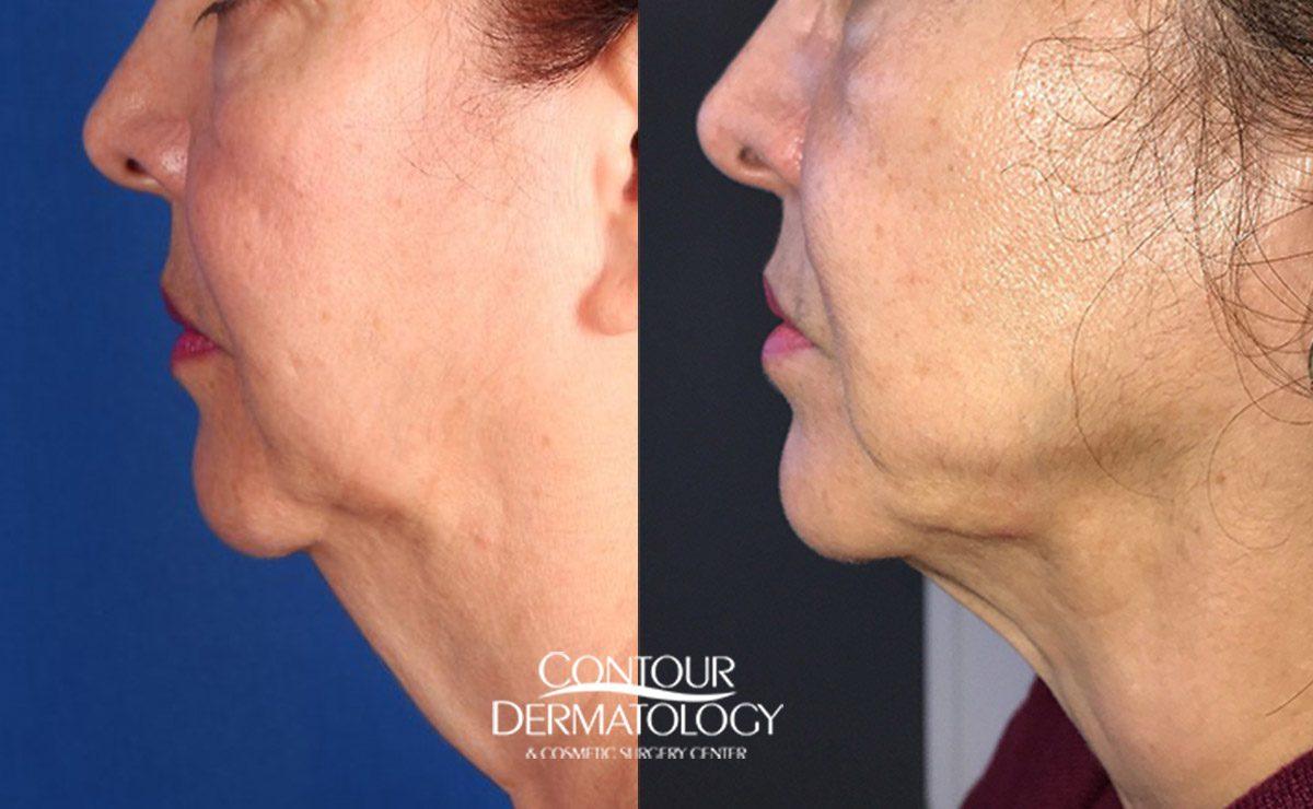 Chin Liposculpture Photo Gallery Contour Dermatology
