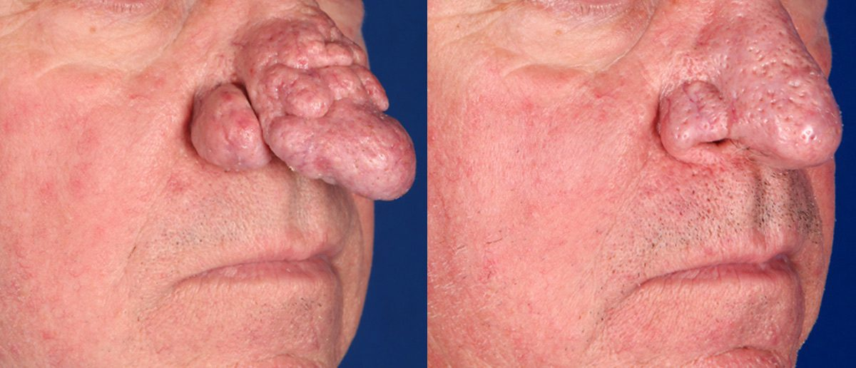 Reducing Rhinophyma Fractional Co2 Laser Delivers Life Changing Results Contour Dermatology