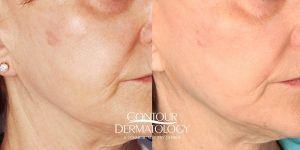 Fraxel Laser for Face - Contour Dermatology Patient