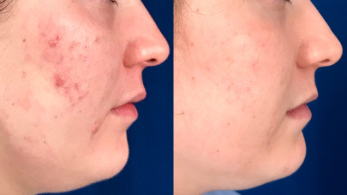 Smoothbeam Laser Before And After Photos La Quinta Palm Desert Contour Dermatology