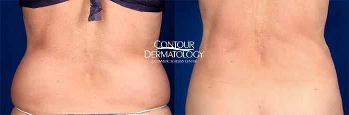 Liposuction for Flanks