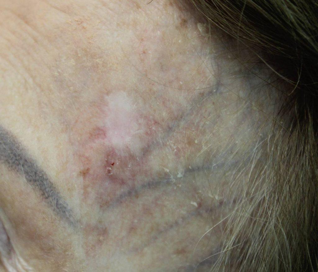 Basal Cell Carcinoma   Contour Dermatology