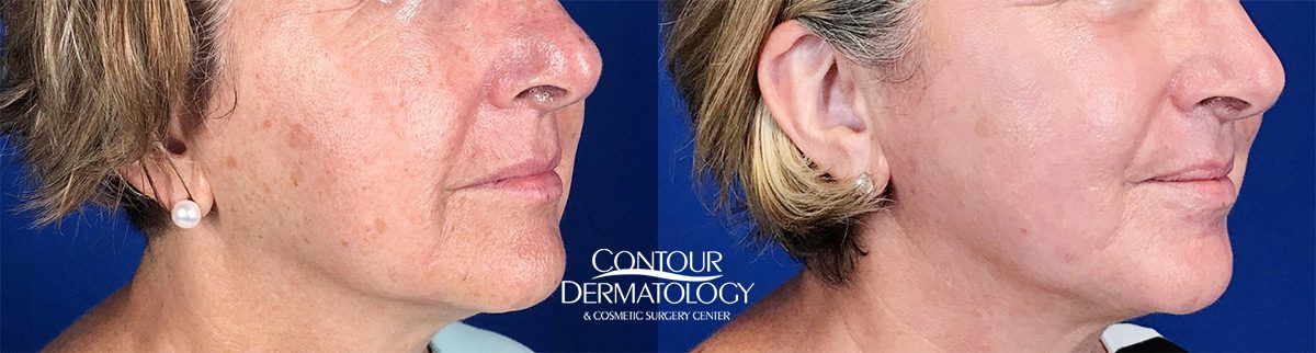 IPL Laser Photo Gallery Before and After, Palm Desert, Palm