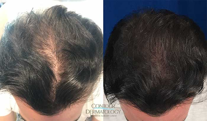NeoGraft Hair Transplant, 2500 Grafts