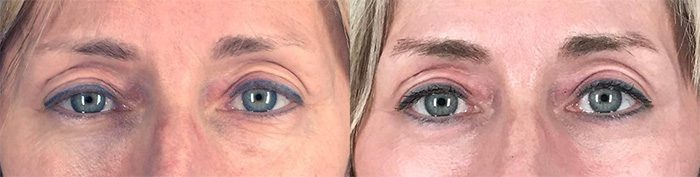 Lower Eyelid Surgery (Lower Blepharoplasty) plus CO2 Laser Resurfacing around Eyes, One month after