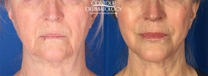 Mini Facelift with Full Face CO2, 8 Months Post Treatment.