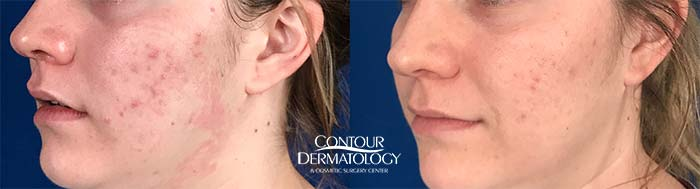 Smoothbeam Laser Treatment for acne scarring