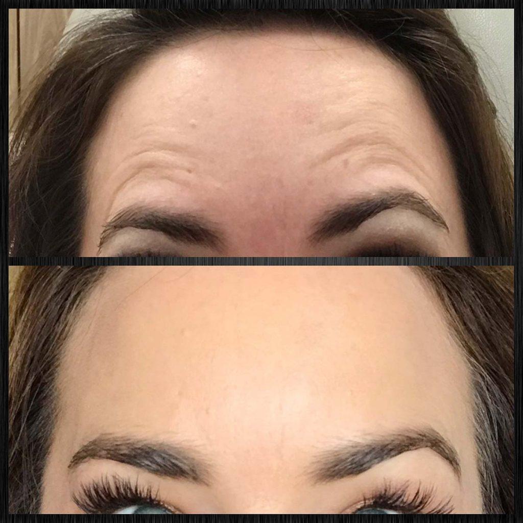 Contour Dermatology Bye Bye Wrinkles Hello Botox Contour Dermatology