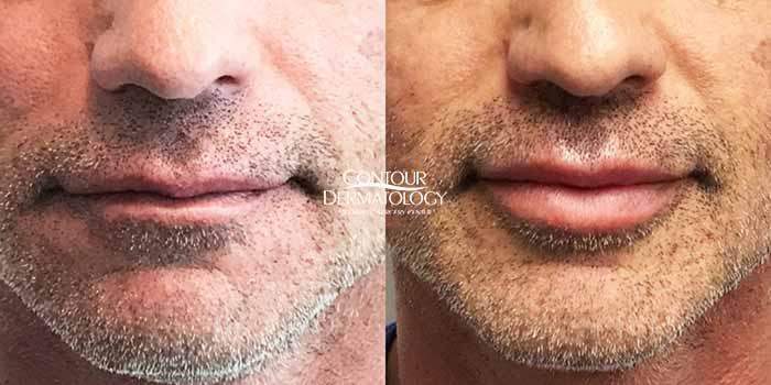 Restylane Defyne, male patient lips