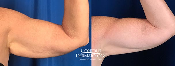 CoolSculpting for arms results