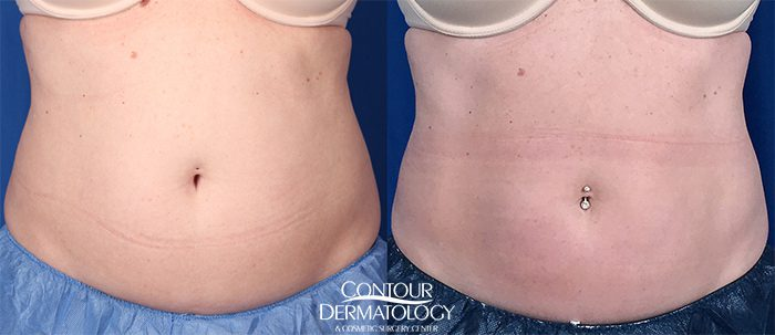 CoolSculpting for upper and lower abdomen