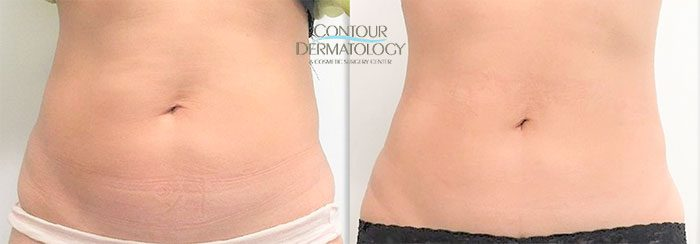 CoolSculpting and VelaShape III for Abdomen, 2 treatments