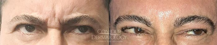 Botox injections between the eyes (Glabella)