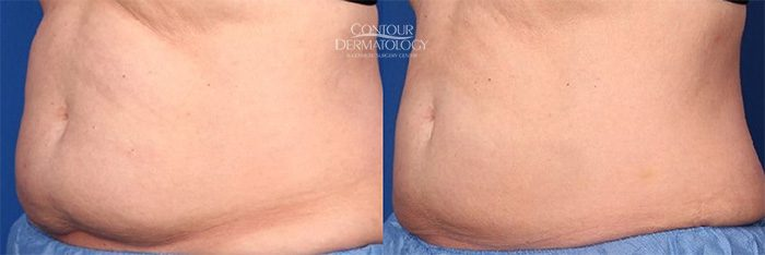 CoolSculpting before and after, 4 treatments to lower abdomen.