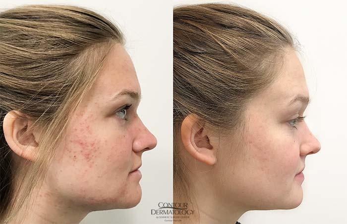 Acne Scars Treatment Before And After Photos La Quinta Palm Desert Contour Dermatology